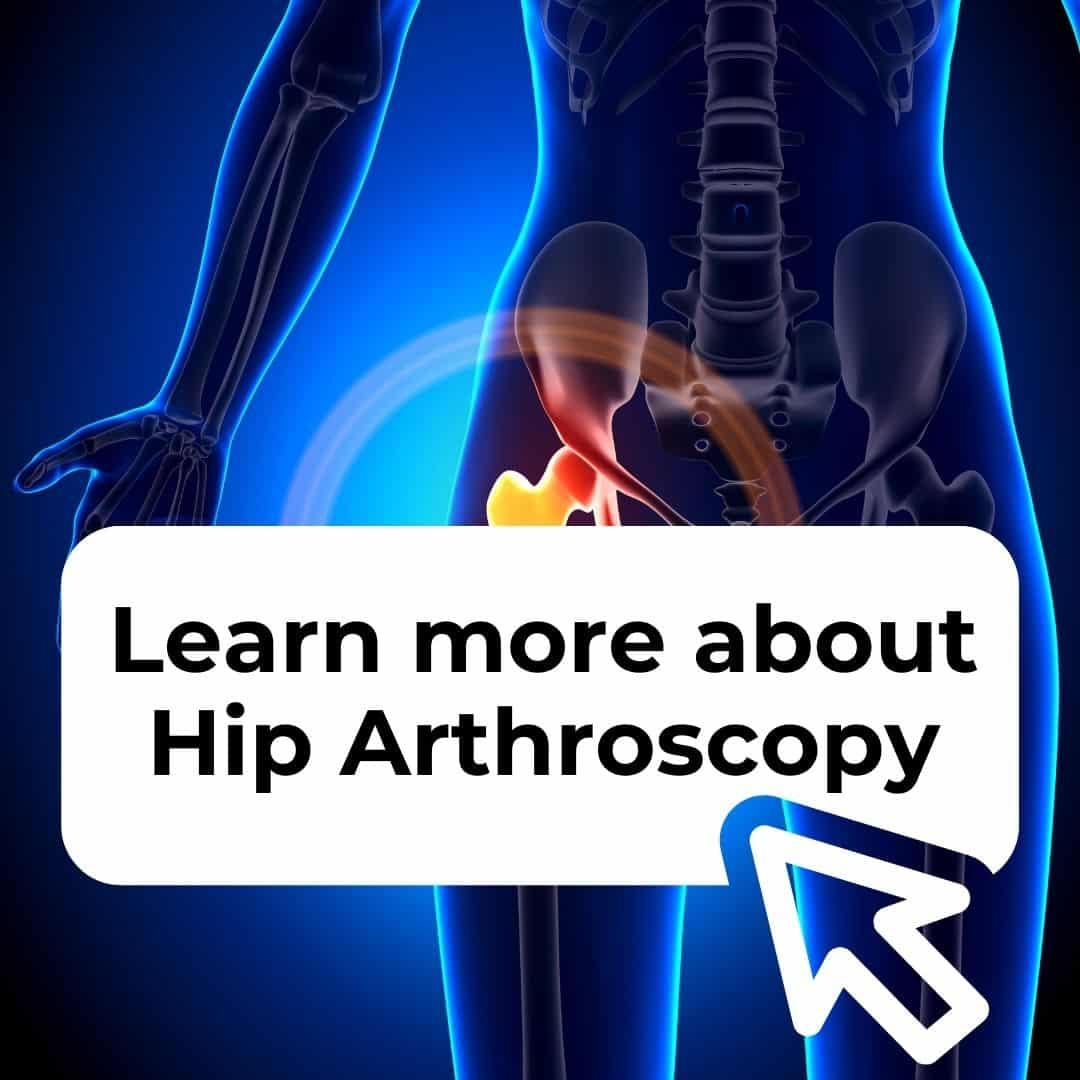 Learn more about hip arthroscopy