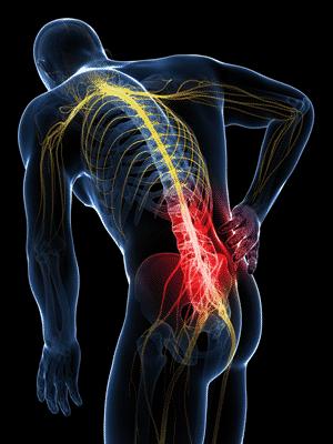 Radiating Spine Pain